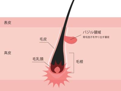 従来の脱毛方法