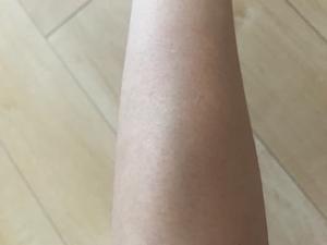 シースリーの腕脱毛の体験談