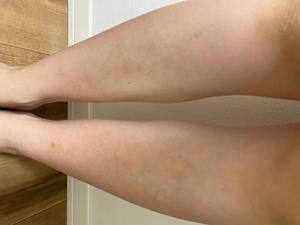 銀座カラーの足脱毛