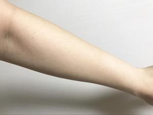 銀座カラーの腕脱毛口コミ