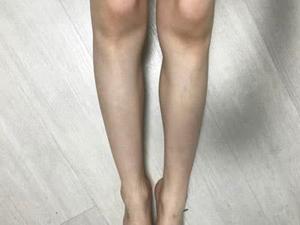 脱毛ラボの足脱毛